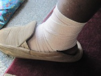 fat feet https://bugsandstuff.wordpress.com